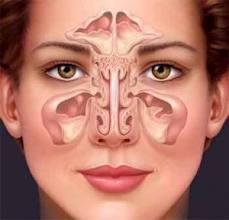 congestión-nasal