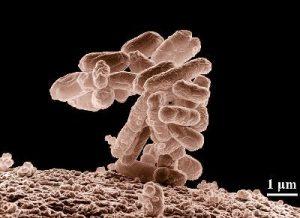 síntomas-de-una-infección-urinaria