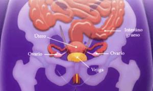 dolor de ovarios