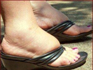 pies-hinchados