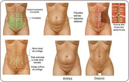 abdominoplastia-procedimiento