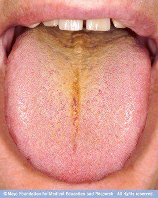 Causas de la lengua amarilla y como curarla - La Guía de las Vitaminas