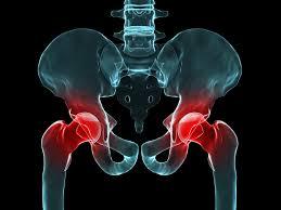 dolor de cadera