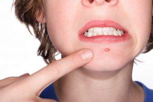 acne-