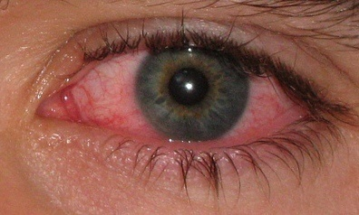 ojo-rojo2