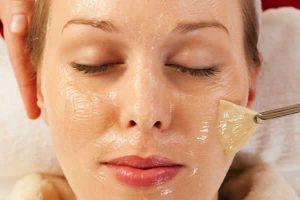 9 formas de quitar las cicatrices del acné