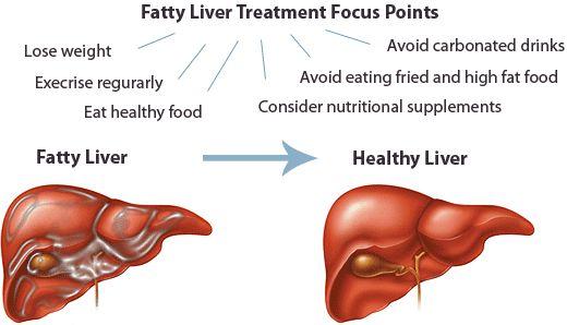38 Alimentos Prohibidos Si Tienes Hígado Graso - La Guía de las ...