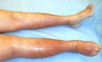 como-tratar-la-flebitis-4