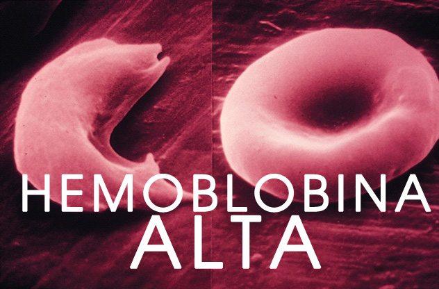hemoglobina corpuscular media alta en el embarazo