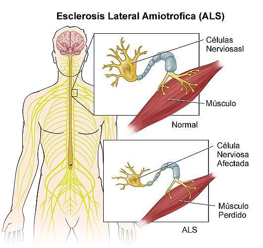 Lista de Enfermedades Del Sistema Muscular