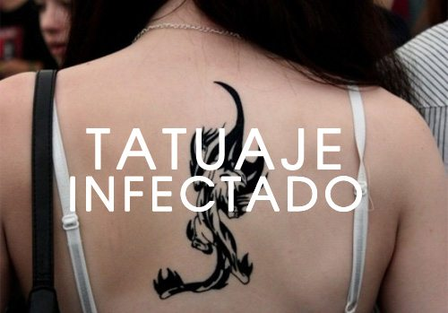Como Saber Si Un Tatuaje Esta Infectado Nunca Lo Ignores