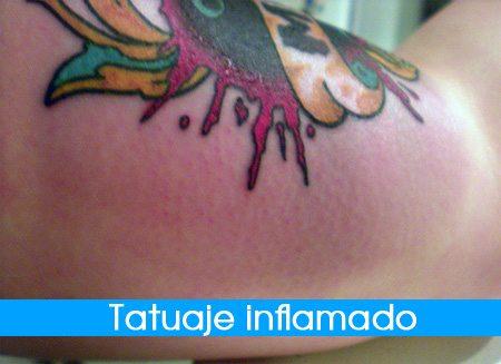 tatuaje-inflamado