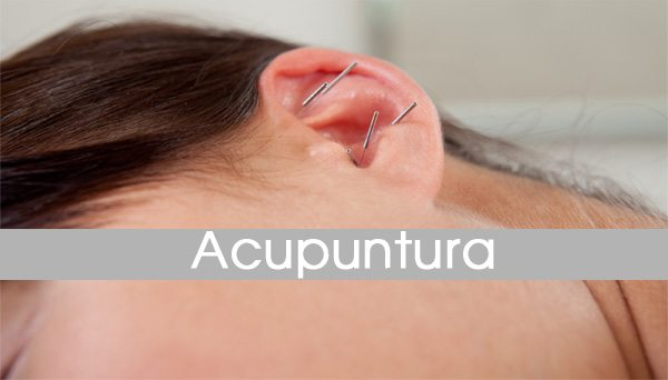 acupuntura-2