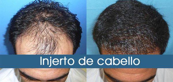 injerto-de-cabello