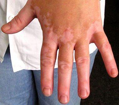 vitiligo-5