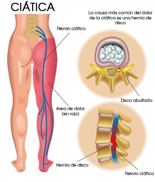 nervio-ciatico