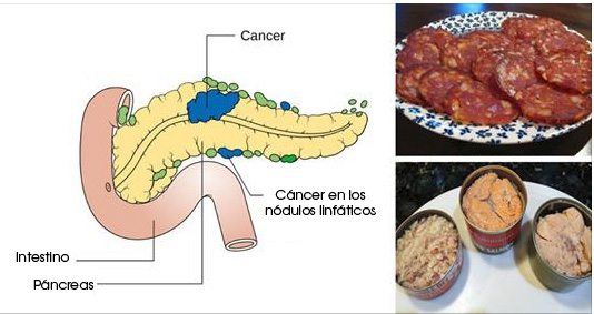 alimentos-que-causan-cancer
