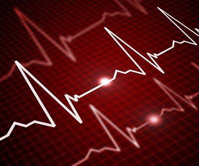 electrocardiograma-corazont