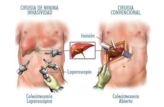 tipos-de-cirugias