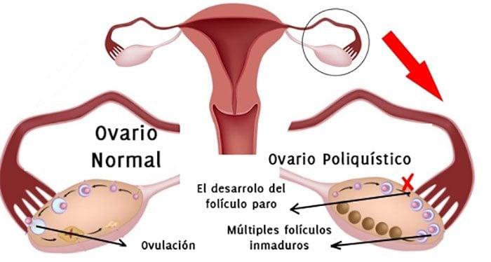 Síndrome de Ovario Poloquístico: Síntomas, Causas y Tratamiento - La ...