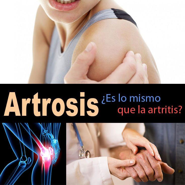 artosis-es-lo-mismo-que-la-artritis
