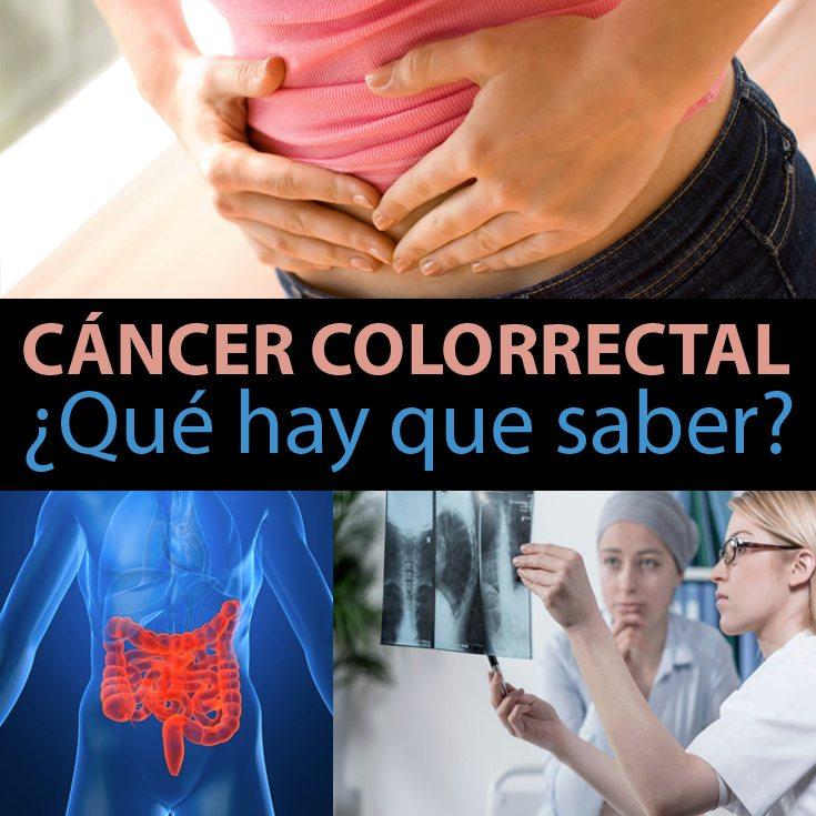 cancer-colorrectal-que-hay-que-saber