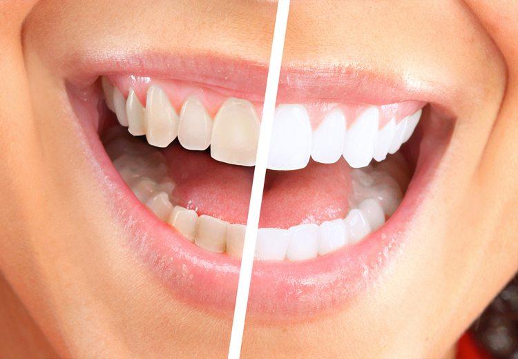 mujer-dientes-dan%cc%83ados