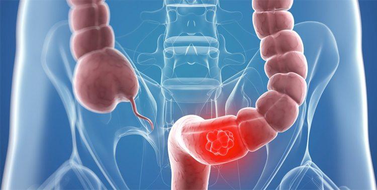 radiografia-cancer-colon