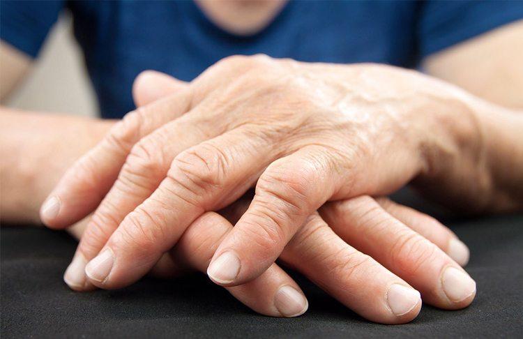 mujer-con-artritis