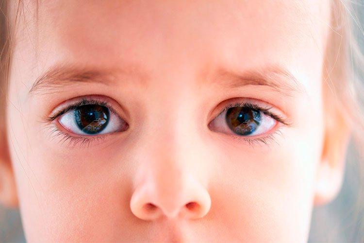 nino-de-frente-con-ojos-irritados