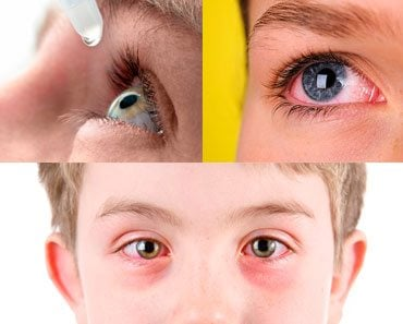 Conjuntivitis ¿Qué Es? Causas, Signos, Síntomas Y