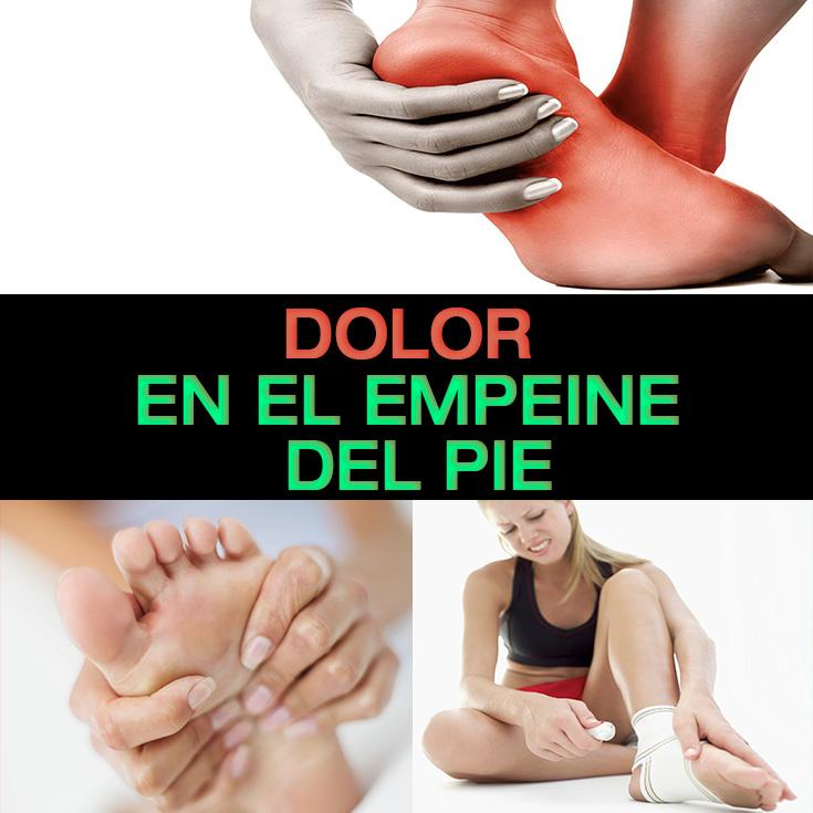 Dolor En El Empeine Del Pie: Causas, Síntomas Y Tratamiento - La ...