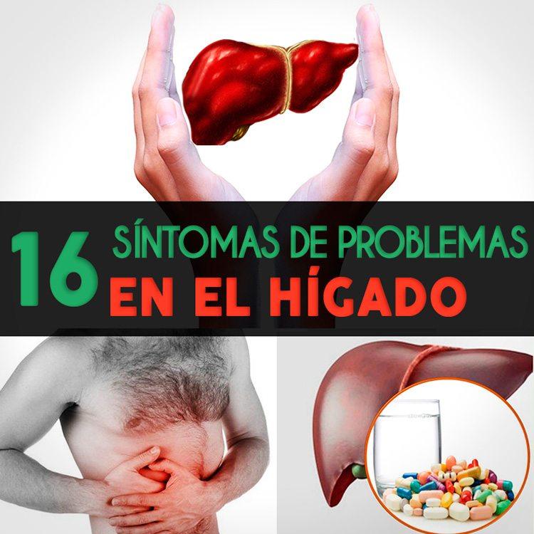 16 Señales De Que Tienes Problemas En El Hígado - La Guía de las ...