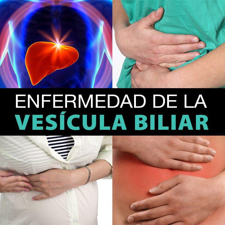 Enfermedad De La Vesícula Biliar: Tipos, Diagnóstico Y Tratamiento ...