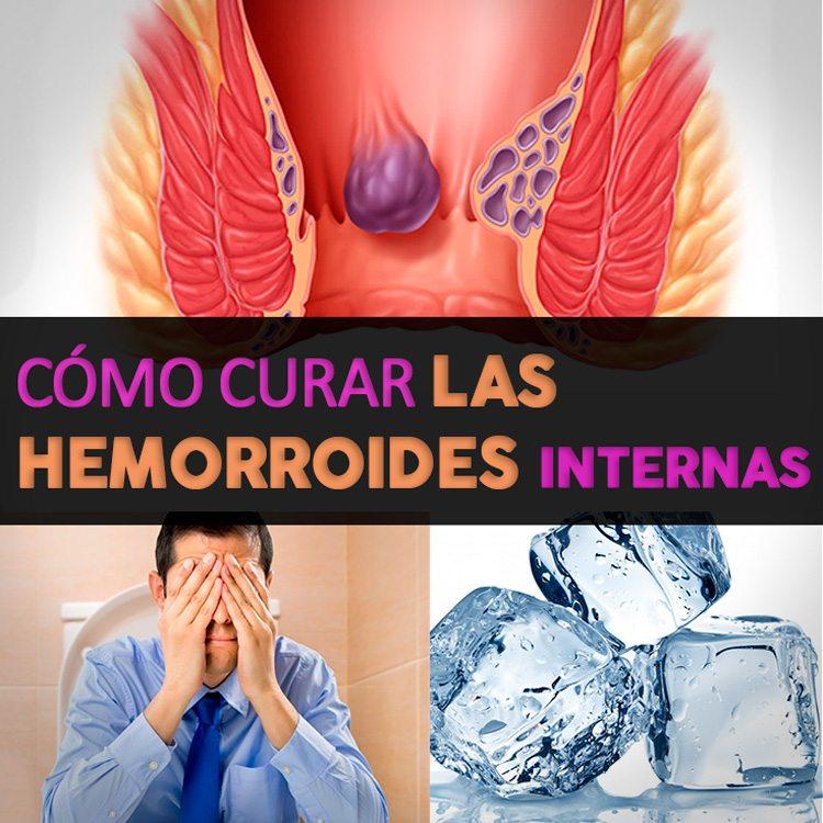 Cómo Curar Las Hemorroides Internas - [Método 100% Natural] - La ...
