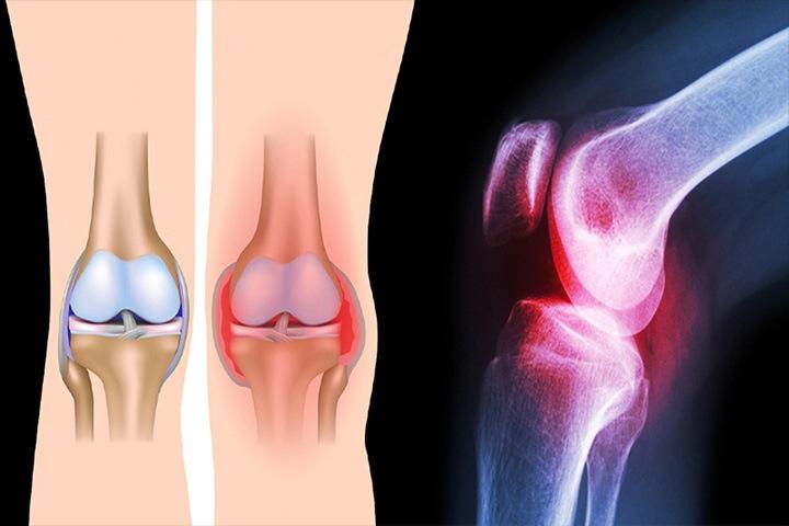 rodillas-dolor - La Guía de las Vitaminas